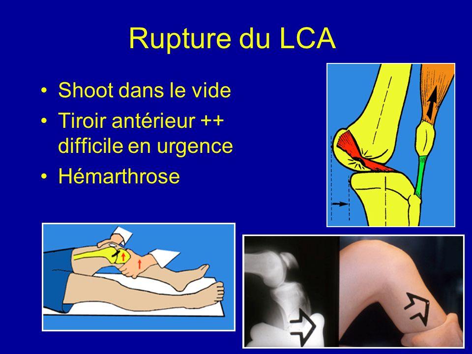 Rupture du LCA Shoot dans le vide Tiroir antérieur ++ difficile en urgence Hémarthrose