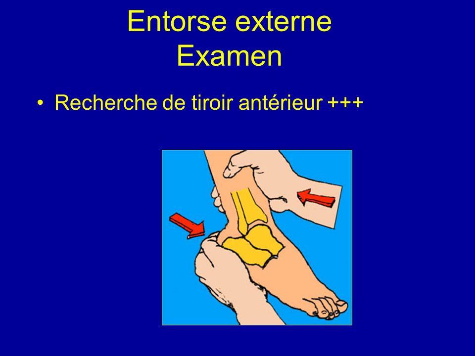 Entorse externe Examen Recherche de tiroir antérieur +++