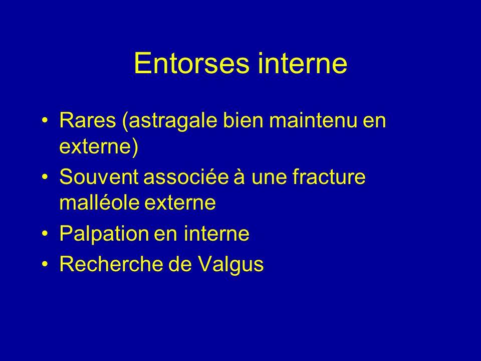 Entorses interne Rares (astragale bien maintenu en externe) Souvent associée à une fracture malléole externe Palpation en interne Recherche de Valgus