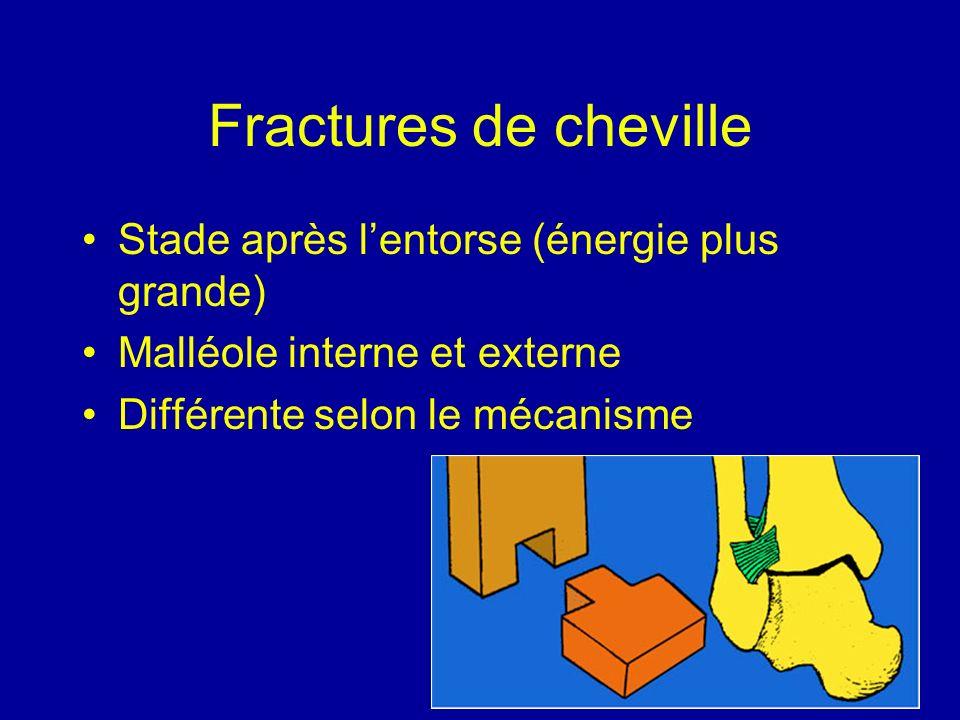 Fractures de cheville Stade après lentorse (énergie plus grande) Malléole interne et externe Différente selon le mécanisme