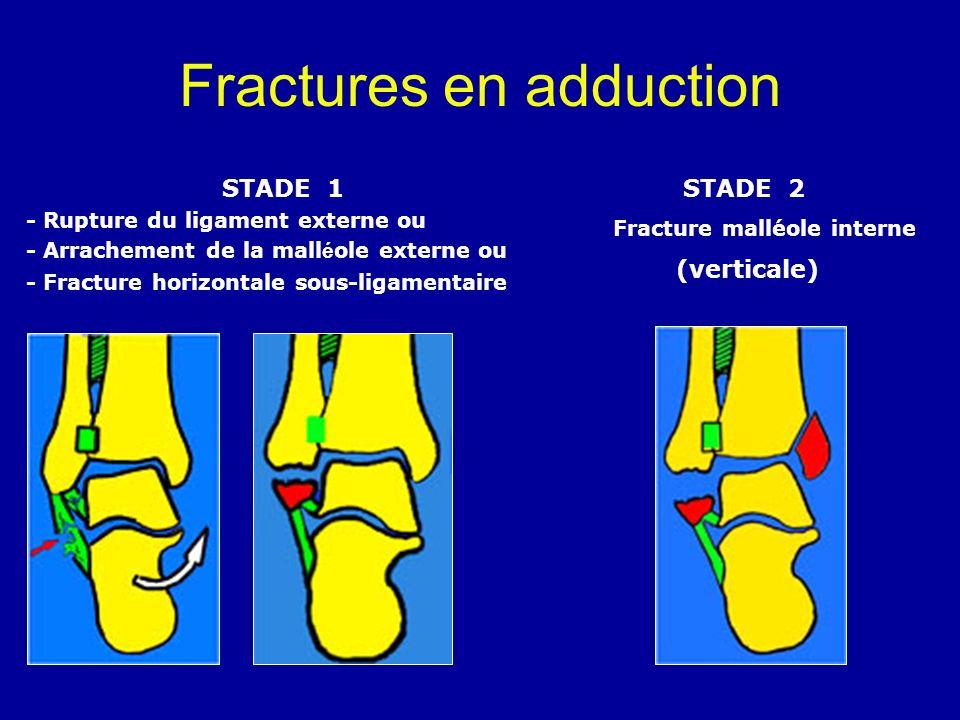 Fractures en adduction STADE 1 - Rupture du ligament externe ou - Arrachement de la mall é ole externe ou - Fracture horizontale sous-ligamentaire STA
