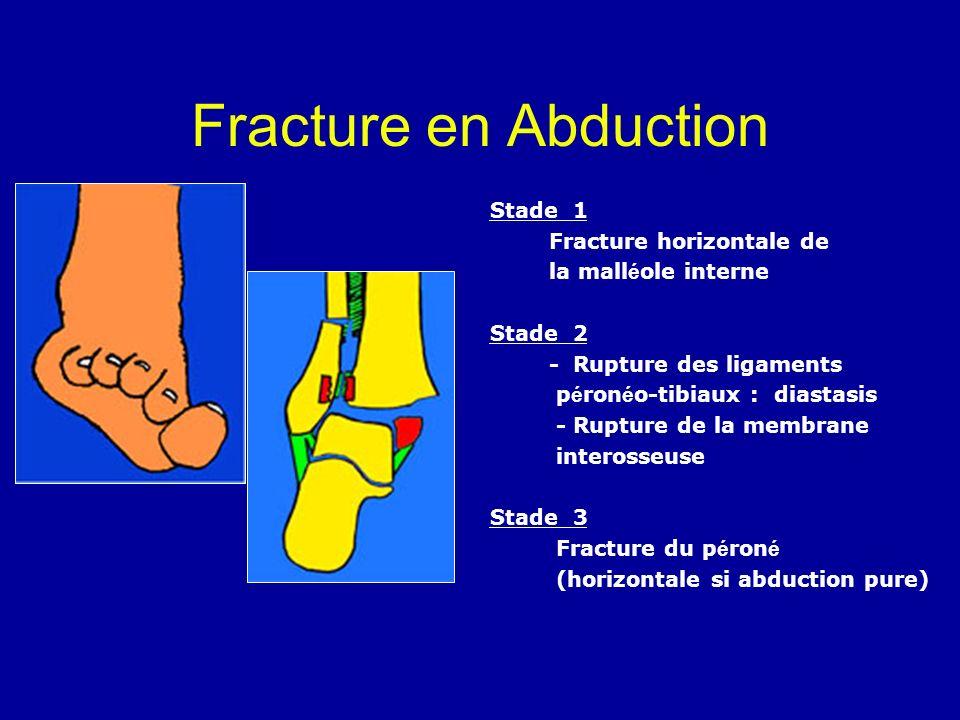 Fracture en Abduction Stade 1 Fracture horizontale de la mall é ole interne Stade 2 - Rupture des ligaments p é ron é o-tibiaux : diastasis - Rupture