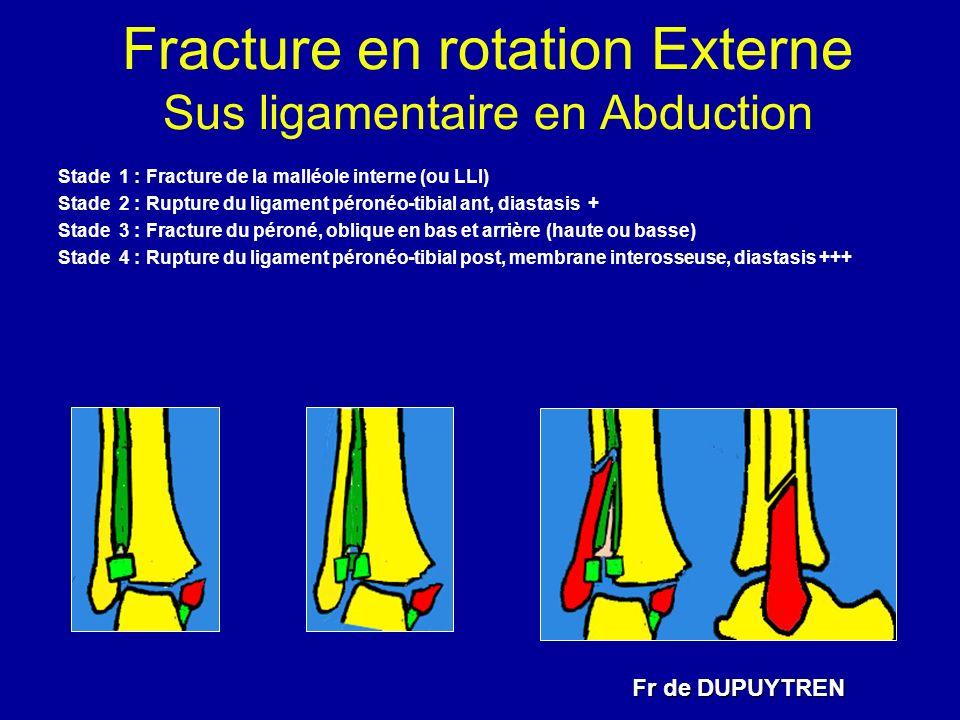 Fracture en rotation Externe Sus ligamentaire en Abduction Fr de DUPUYTREN Stade 1 : Fracture de la malléole interne (ou LLI) Stade 2 : Rupture du lig
