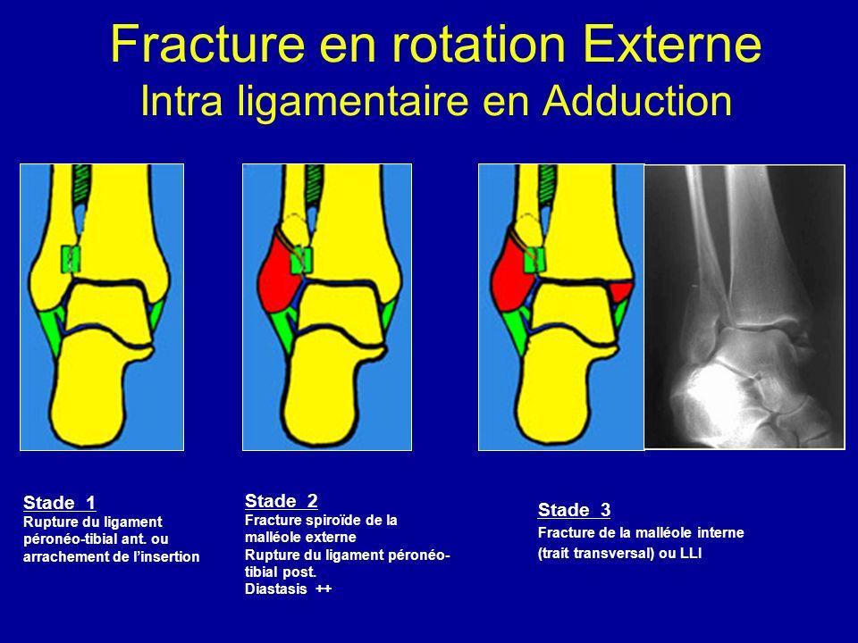 Stade 1 Rupture du ligament péronéo-tibial ant. ou arrachement de linsertion Stade 2 Fracture spiroïde de la malléole externe Rupture du ligament péro