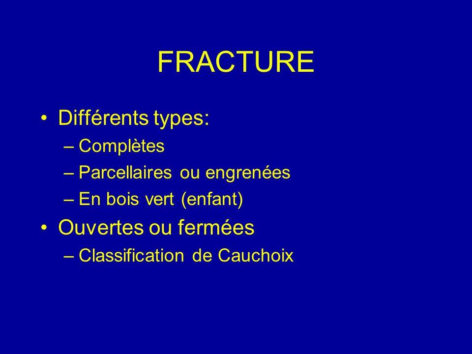 FRACTURE Différents types: –Complètes –Parcellaires ou engrenées –En bois vert (enfant) Ouvertes ou fermées –Classification de Cauchoix
