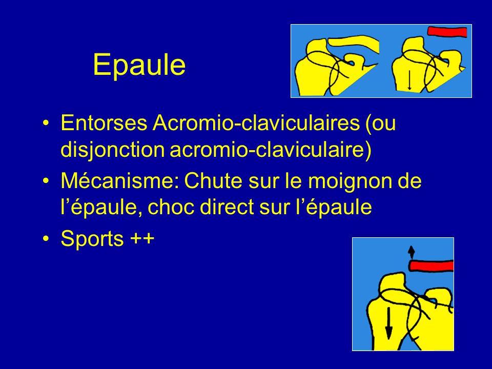 Epaule Entorses Acromio-claviculaires (ou disjonction acromio-claviculaire) Mécanisme: Chute sur le moignon de lépaule, choc direct sur lépaule Sports