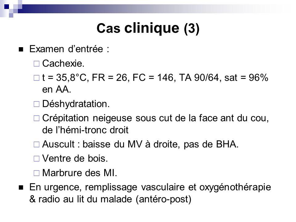 Cas clinique (3) Examen dentrée : Cachexie. t = 35,8°C, FR = 26, FC = 146, TA 90/64, sat = 96% en AA. Déshydratation. Crépitation neigeuse sous cut de