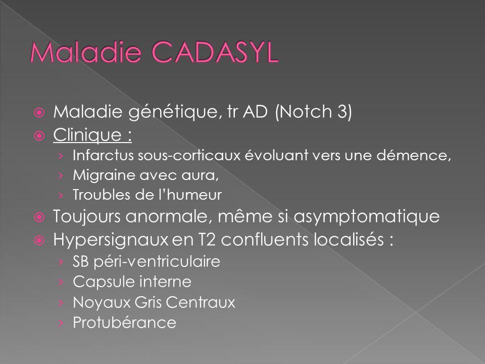 Maladie génétique, tr AD (Notch 3) Clinique : Infarctus sous-corticaux évoluant vers une démence, Migraine avec aura, Troubles de lhumeur Toujours ano