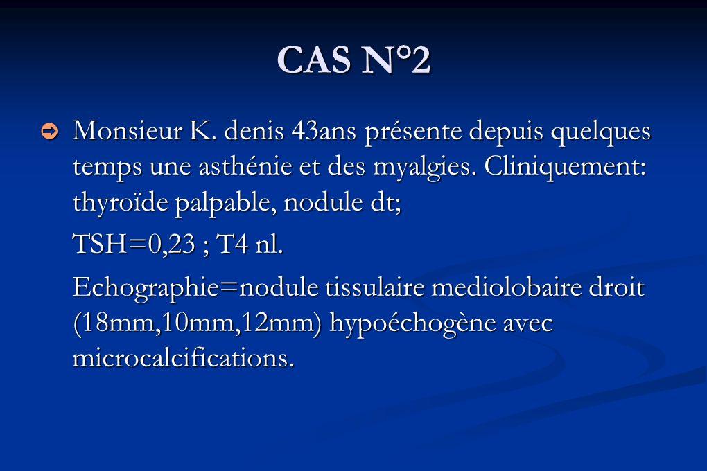 CAS N°2 Monsieur K. denis 43ans présente depuis quelques temps une asthénie et des myalgies. Cliniquement: thyroïde palpable, nodule dt; Monsieur K. d