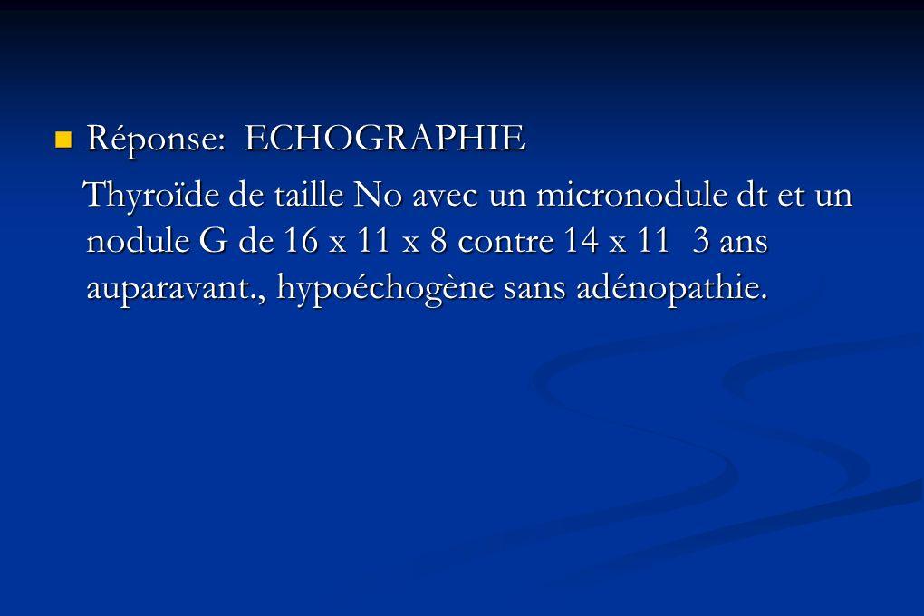 Réponse: ECHOGRAPHIE Réponse: ECHOGRAPHIE Thyroïde de taille No avec un micronodule dt et un nodule G de 16 x 11 x 8 contre 14 x 11 3 ans auparavant.,