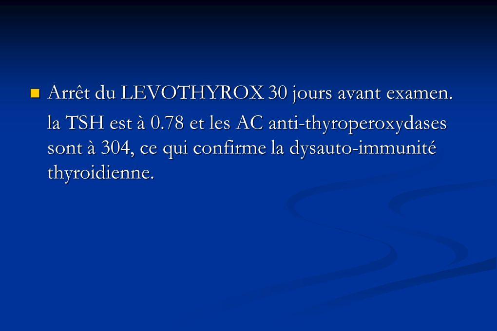 Arrêt du LEVOTHYROX 30 jours avant examen. Arrêt du LEVOTHYROX 30 jours avant examen. la TSH est à 0.78 et les AC anti-thyroperoxydases sont à 304, ce