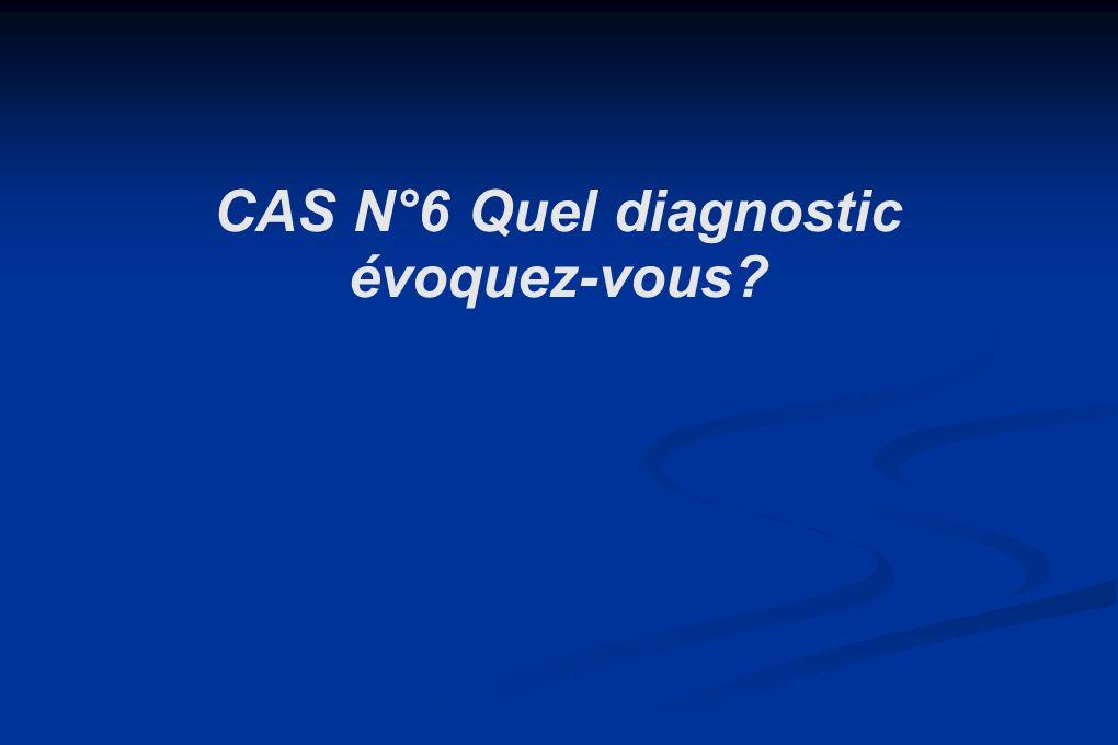 CAS N°6 Quel diagnostic évoquez-vous?