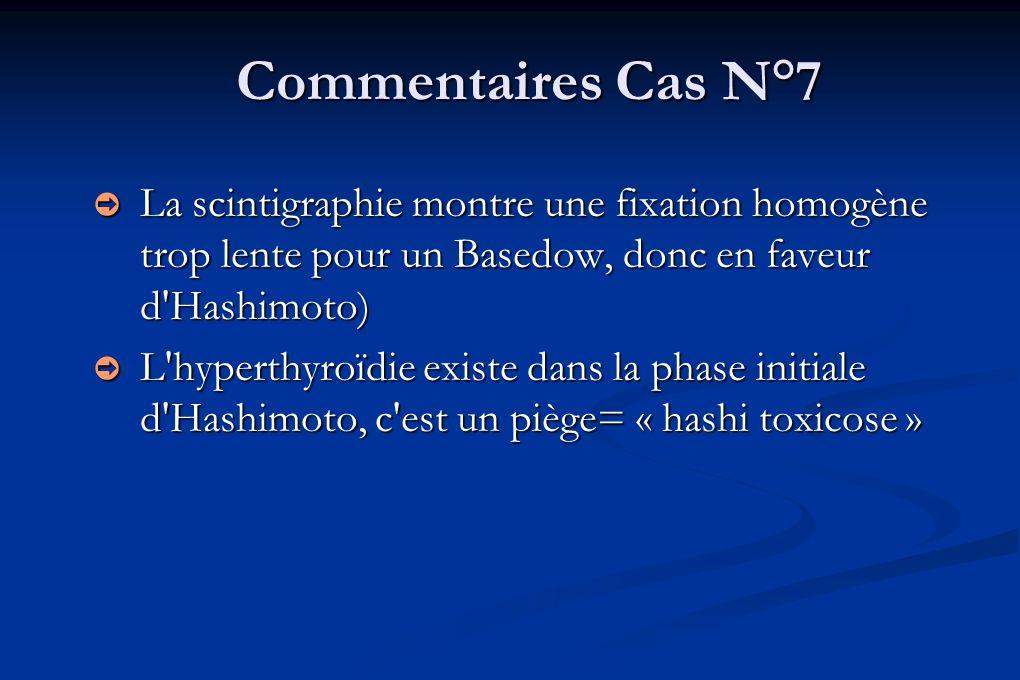 Commentaires Cas N°7 La scintigraphie montre une fixation homogène trop lente pour un Basedow, donc en faveur d'Hashimoto) La scintigraphie montre une