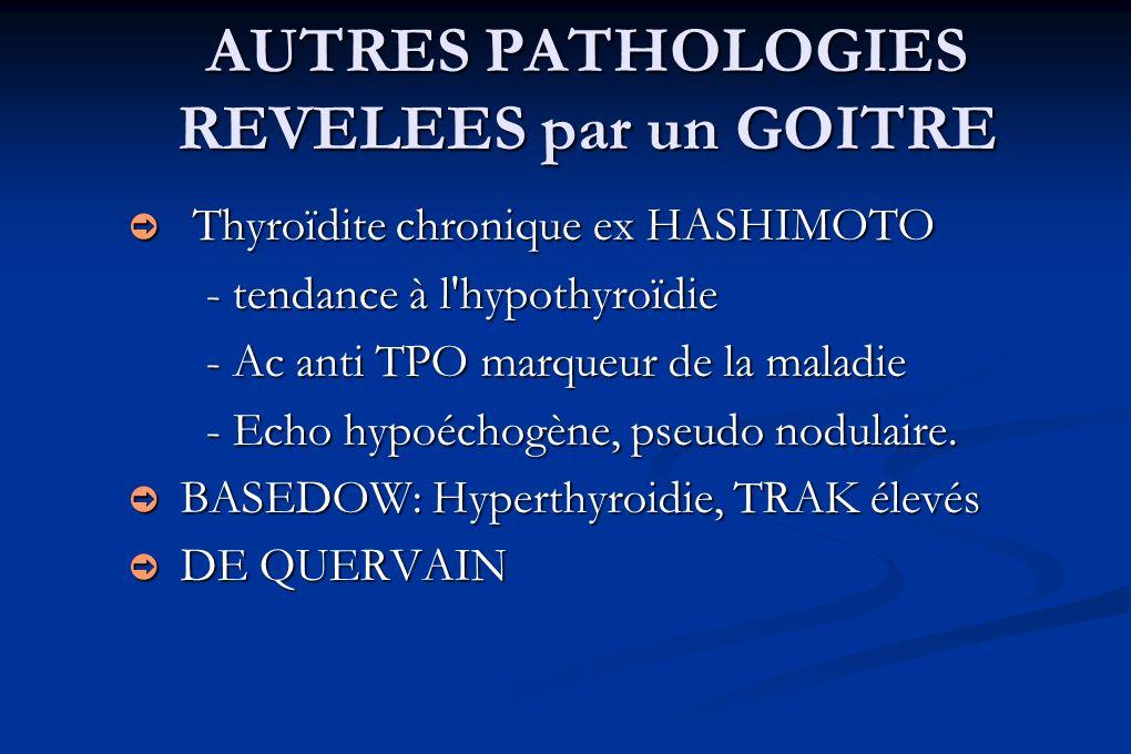 AUTRES PATHOLOGIES REVELEES par un GOITRE Thyroïdite chronique ex HASHIMOTO Thyroïdite chronique ex HASHIMOTO - tendance à l'hypothyroïdie - Ac anti T