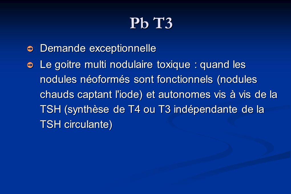 Pb T3 Demande exceptionnelle Demande exceptionnelle Le goitre multi nodulaire toxique : quand les nodules néoformés sont fonctionnels (nodules chauds