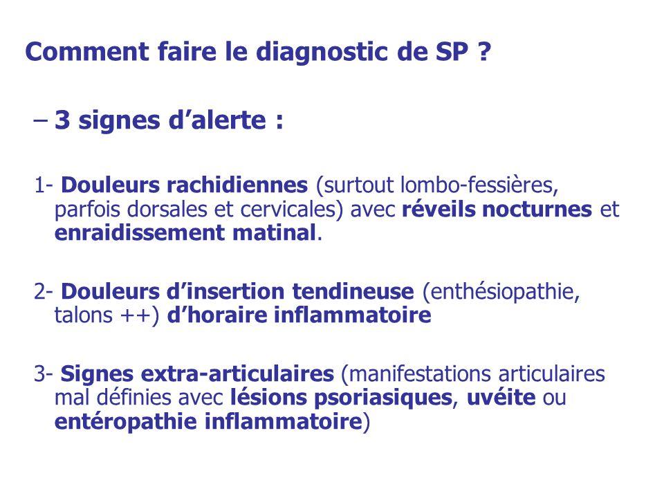 Comment faire le diagnostic de SP ? –3 signes dalerte : 1- Douleurs rachidiennes (surtout lombo-fessières, parfois dorsales et cervicales) avec réveil