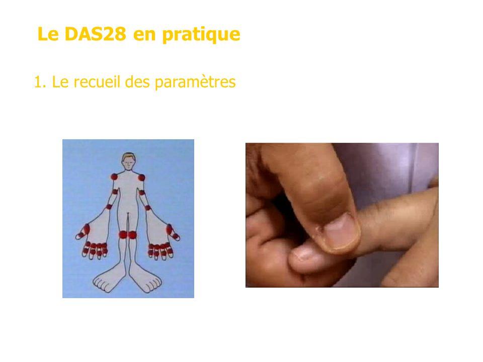 Le DAS28 en pratique Les articulations concernées 28 articulations Evaluation de la douleur La force de pression 1.