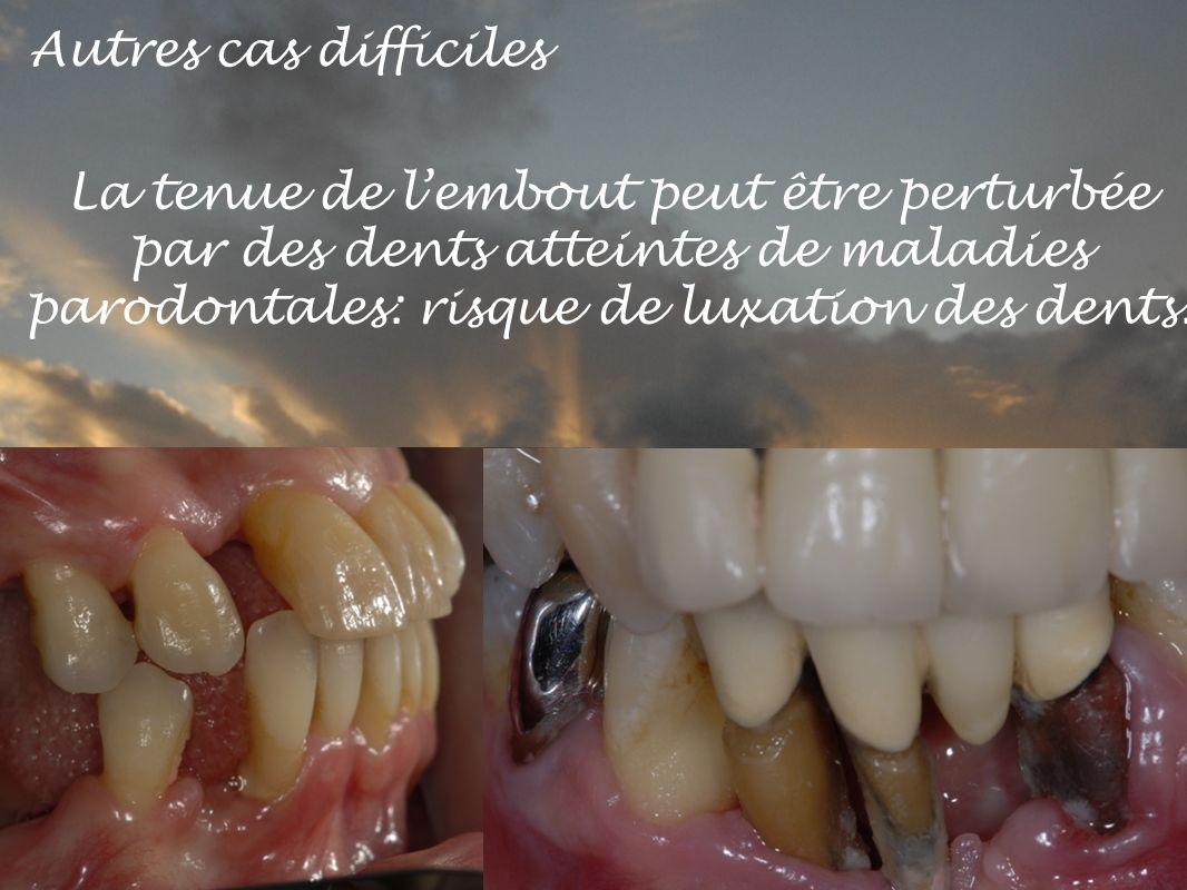 Autres cas difficiles La tenue de lembout peut être perturbée par des dents atteintes de maladies parodontales: risque de luxation des dents.