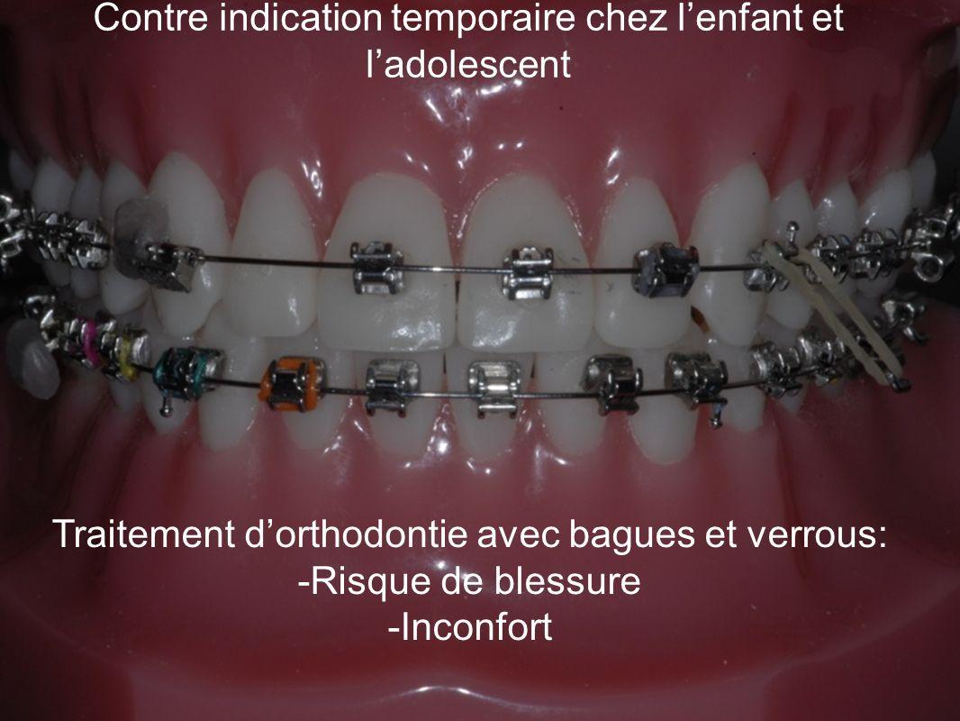 Contre indication temporaire chez lenfant et ladolescent Traitement dorthodontie avec bagues et verrous: -Risque de blessure -Inconfort