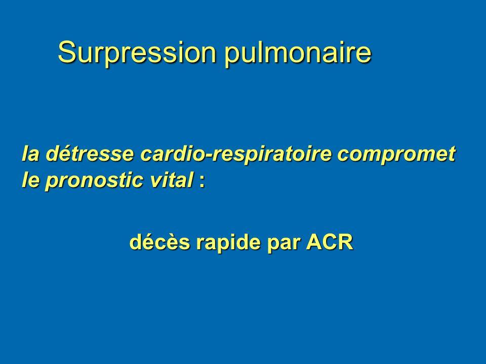 Surpression pulmonaire la détresse cardio-respiratoire compromet le pronostic vital : décès rapide par ACR