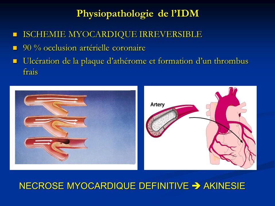 Physiopathologie de lIDM ISCHEMIE MYOCARDIQUE IRREVERSIBLE ISCHEMIE MYOCARDIQUE IRREVERSIBLE 90 % occlusion artérielle coronaire 90 % occlusion artéri