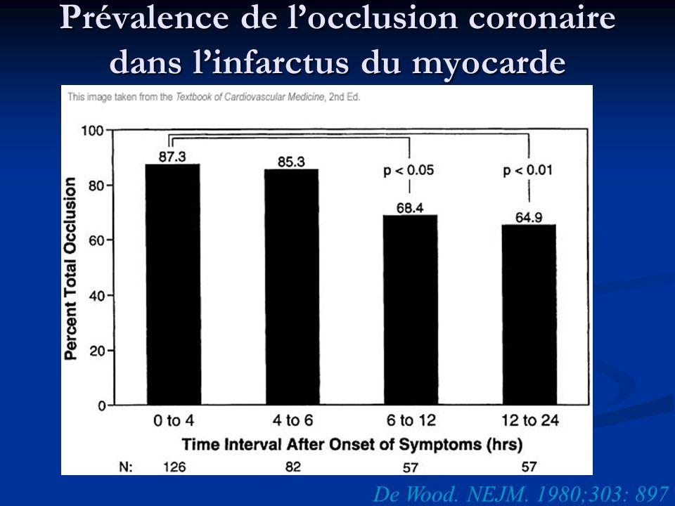 Prévalence de locclusion coronaire dans linfarctus du myocarde De Wood. NEJM. 1980;303: 897