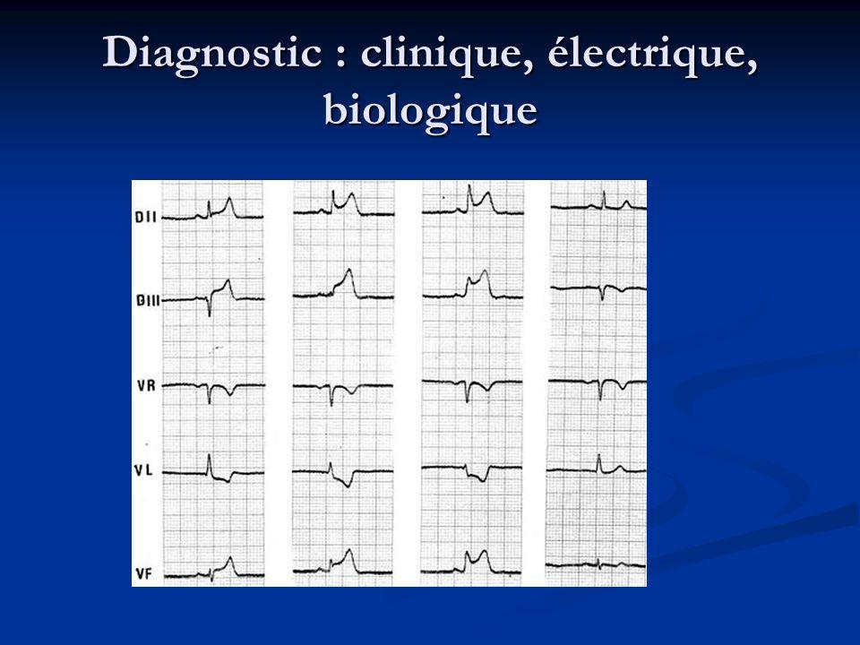 Les marqueurs biologiques Troponine I et T, CPK-MB, ASAT, Myoglobine, LDH Troponine I et T, CPK-MB, ASAT, Myoglobine, LDH (d après Antman EM, in Braunwald E, Heart Disease, 5ème édition,p 1202)
