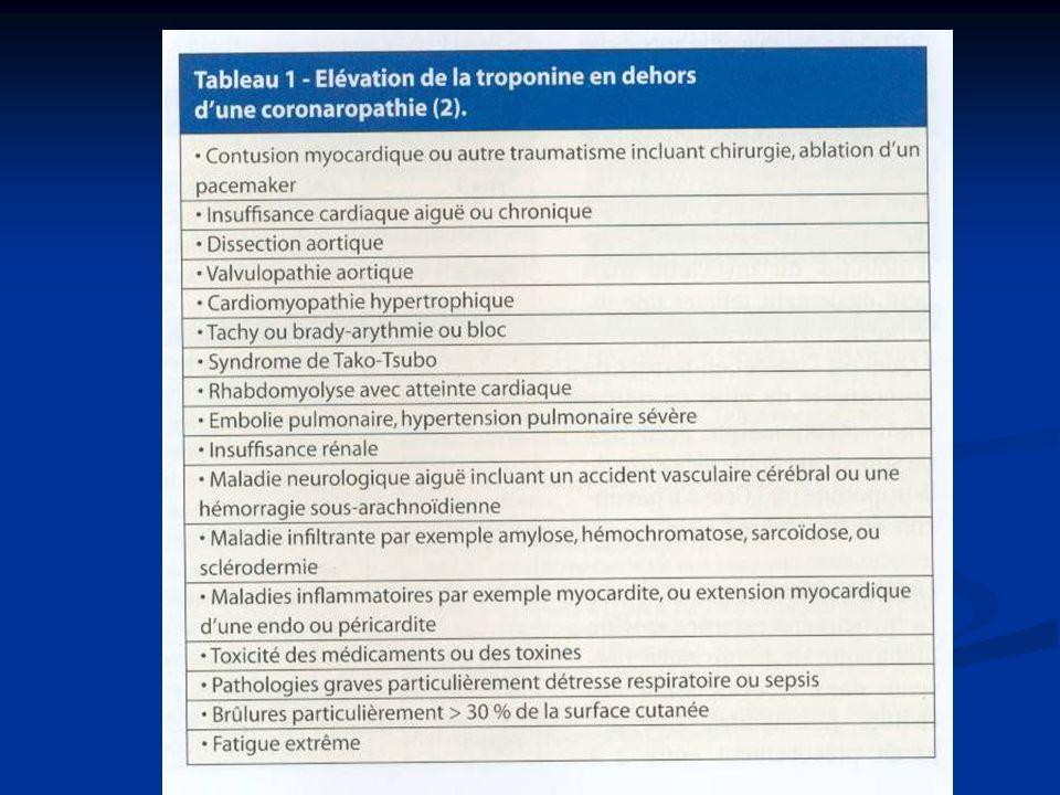 Si absence salle de KT Daprès lESC, « Guidelines for PCI »; 2005