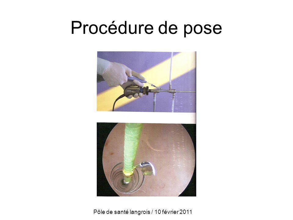 Procédure de pose Pôle de santé langrois / 10 février 2011