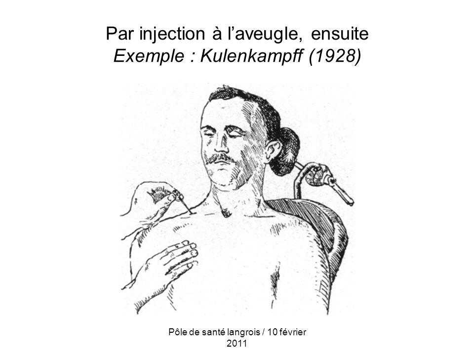 Par injection à laveugle, ensuite Exemple : Kulenkampff (1928) Pôle de santé langrois / 10 février 2011
