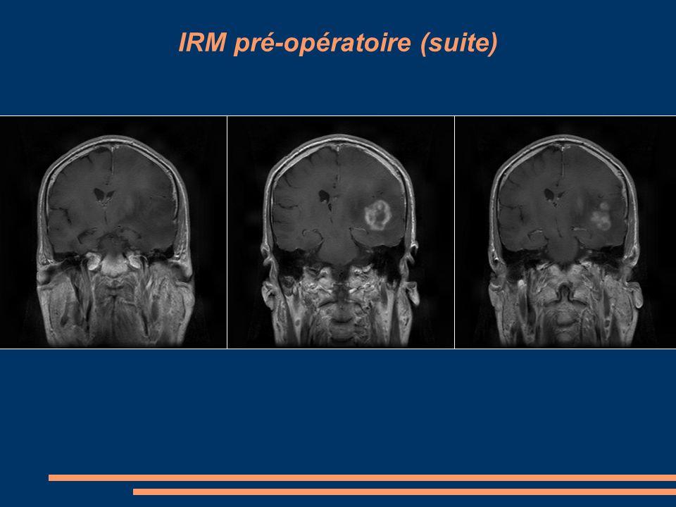 IRM pré-opératoire (suite)