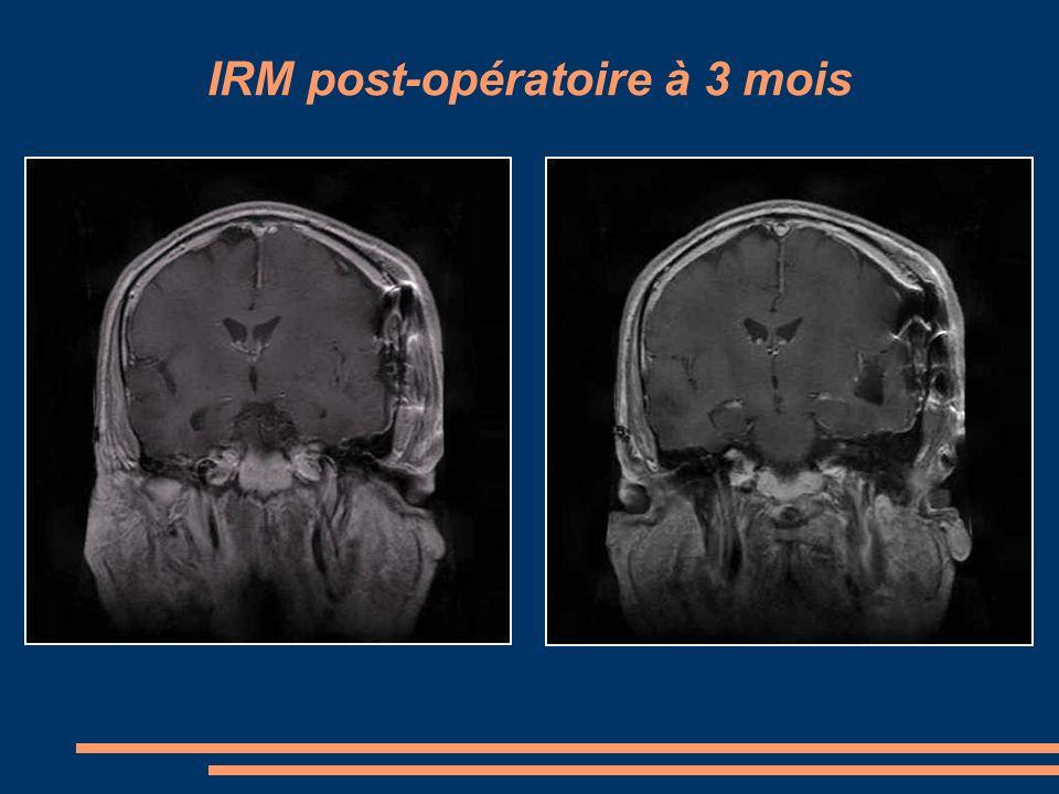 IRM post-opératoire à 3 mois