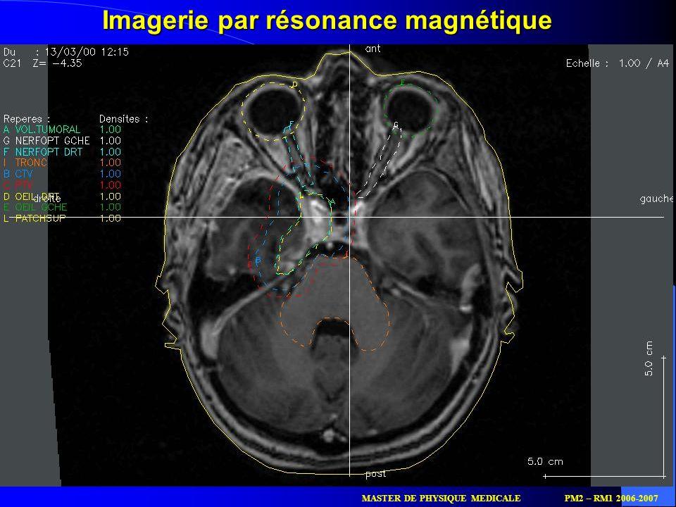 52 Imagerie par résonance magnétique MASTER DE PHYSIQUE MEDICALEPM2 – RM1 2006-2007
