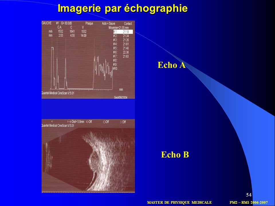 54 Echo A Echo B MASTER DE PHYSIQUE MEDICALEPM2 – RM1 2006-2007 Imagerie par échographie