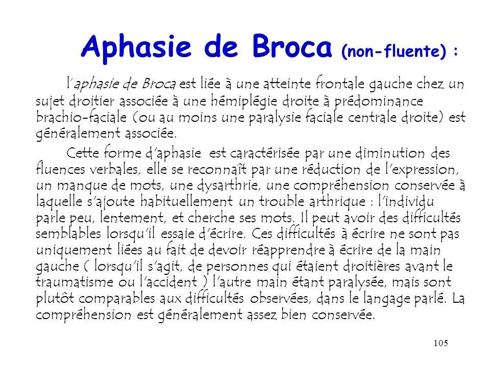 105 Aphasie de Broca (non-fluente) : laphasie de Broca est liée à une atteinte frontale gauche chez un sujet droitier associée à une hémiplégie droite