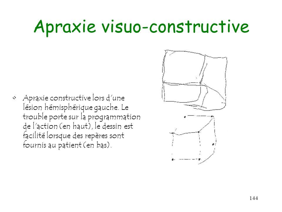 144 Apraxie visuo-constructive Apraxie constructive lors d'une lésion hémisphérique gauche. Le trouble porte sur la programmation de l'action (en haut
