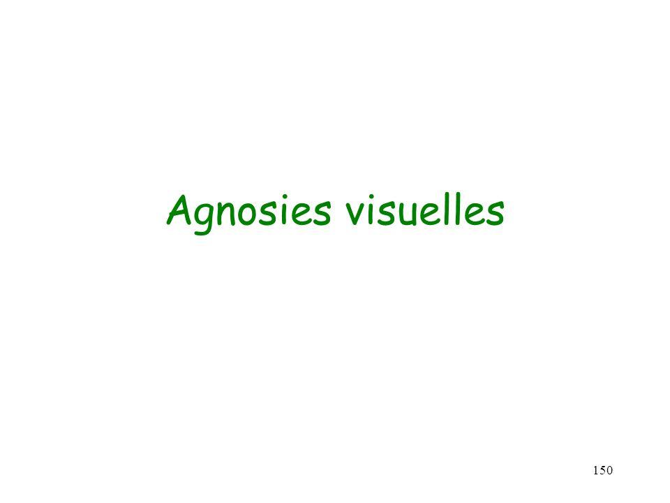 150 Agnosies visuelles