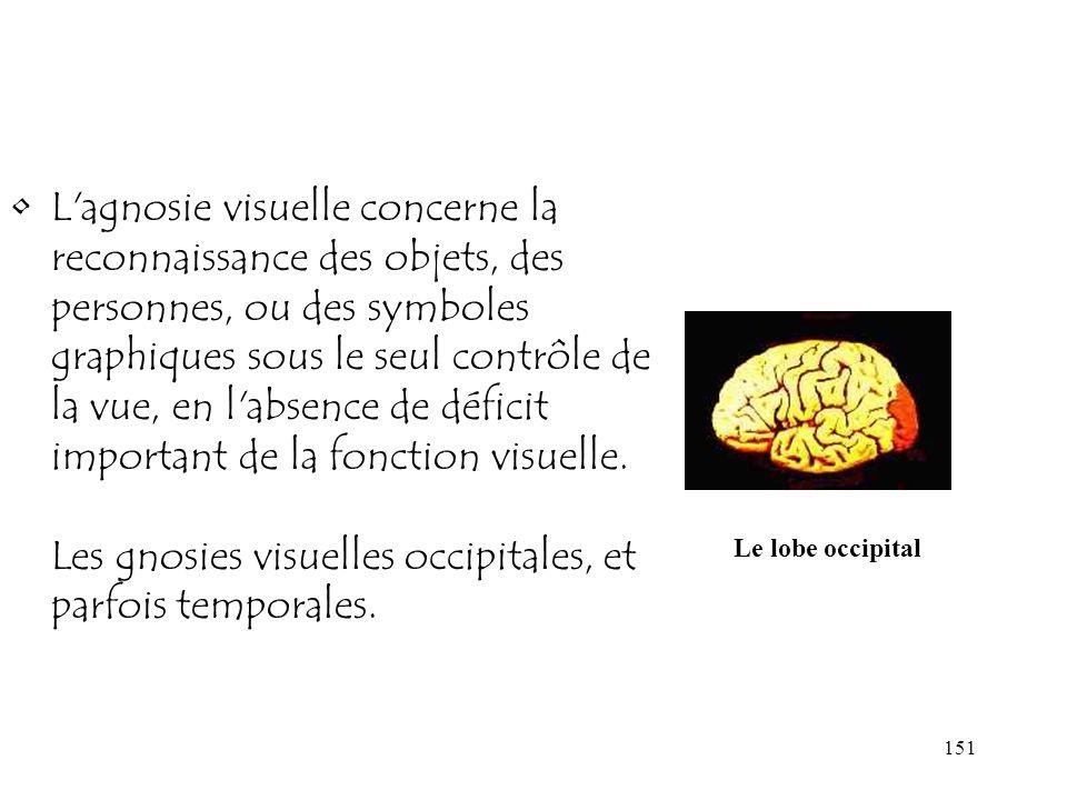 151 L'agnosie visuelle concerne la reconnaissance des objets, des personnes, ou des symboles graphiques sous le seul contrôle de la vue, en l'absence
