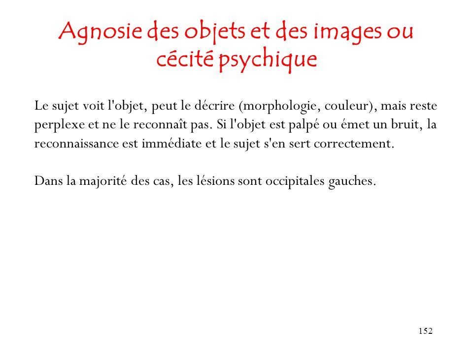 152 Agnosie des objets et des images ou cécité psychique Le sujet voit l'objet, peut le décrire (morphologie, couleur), mais reste perplexe et ne le r