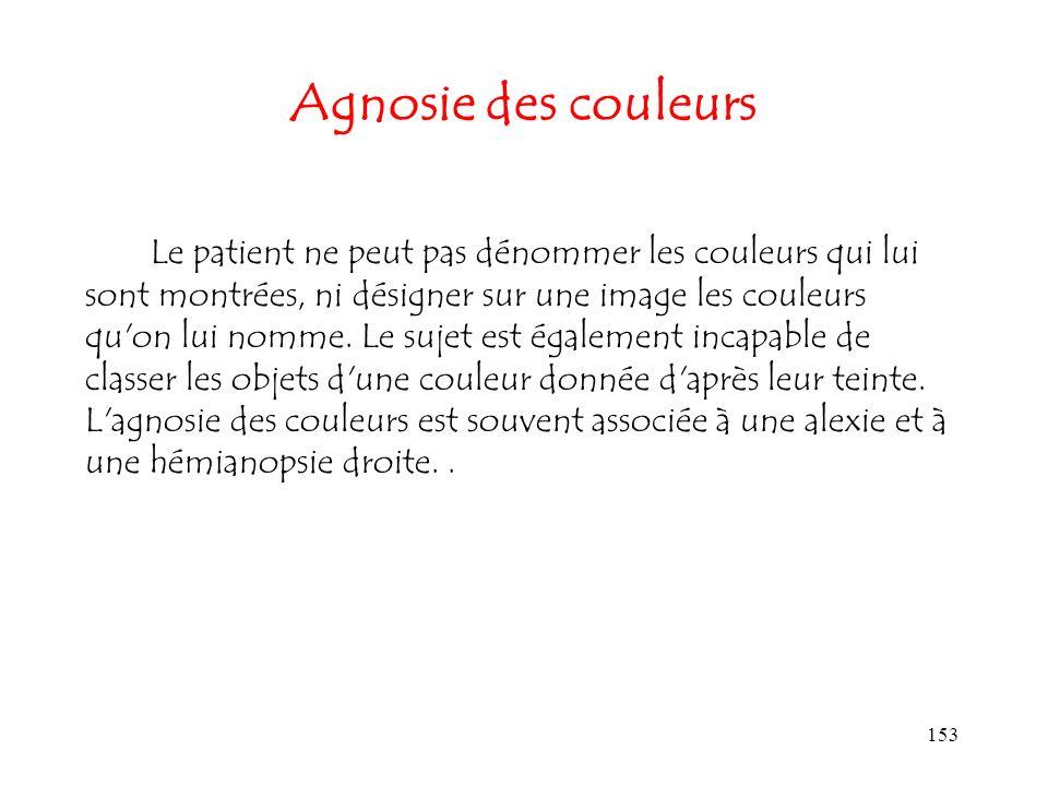 153 Agnosie des couleurs Le patient ne peut pas dénommer les couleurs qui lui sont montrées, ni désigner sur une image les couleurs qu'on lui nomme. L
