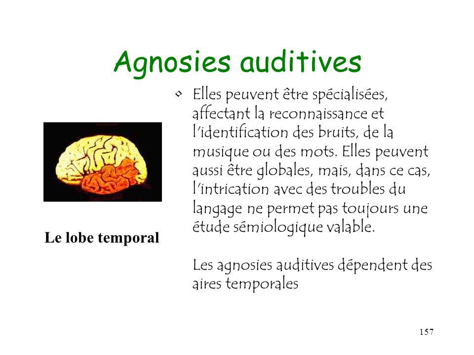 157 Agnosies auditives Elles peuvent être spécialisées, affectant la reconnaissance et l'identification des bruits, de la musique ou des mots. Elles p