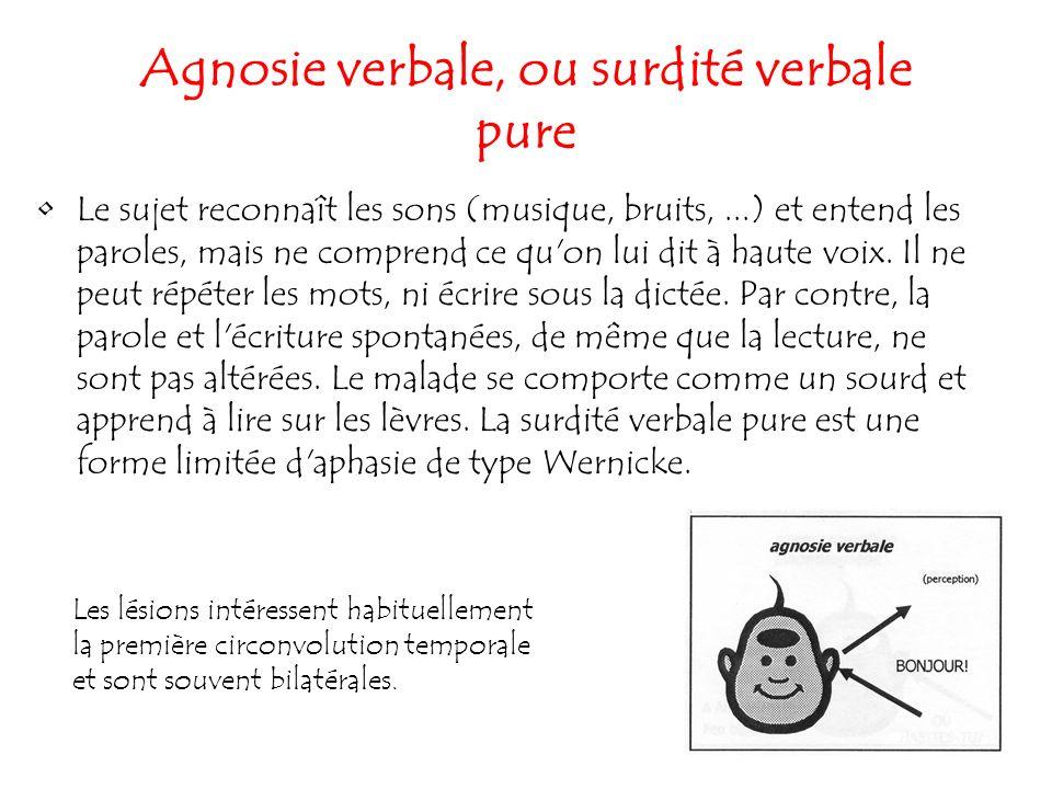 158 Agnosie verbale, ou surdité verbale pure Le sujet reconnaît les sons (musique, bruits,...) et entend les paroles, mais ne comprend ce qu'on lui di