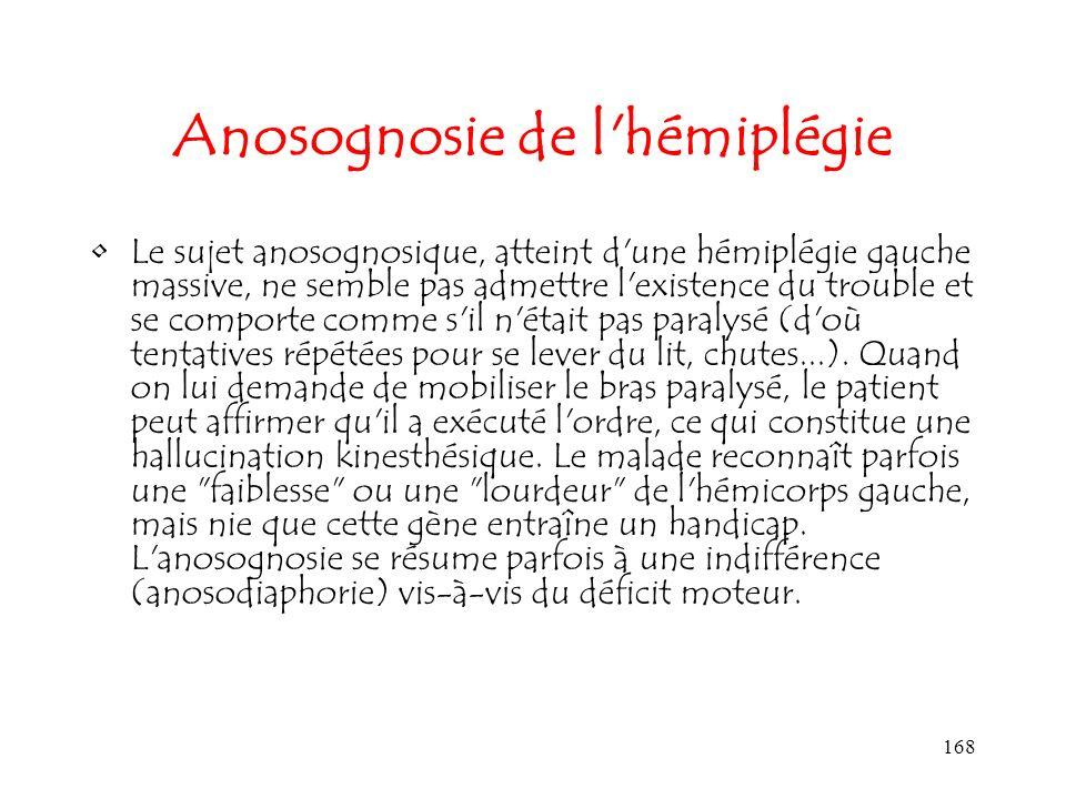 168 Anosognosie de l'hémiplégie Le sujet anosognosique, atteint d'une hémiplégie gauche massive, ne semble pas admettre l'existence du trouble et se c