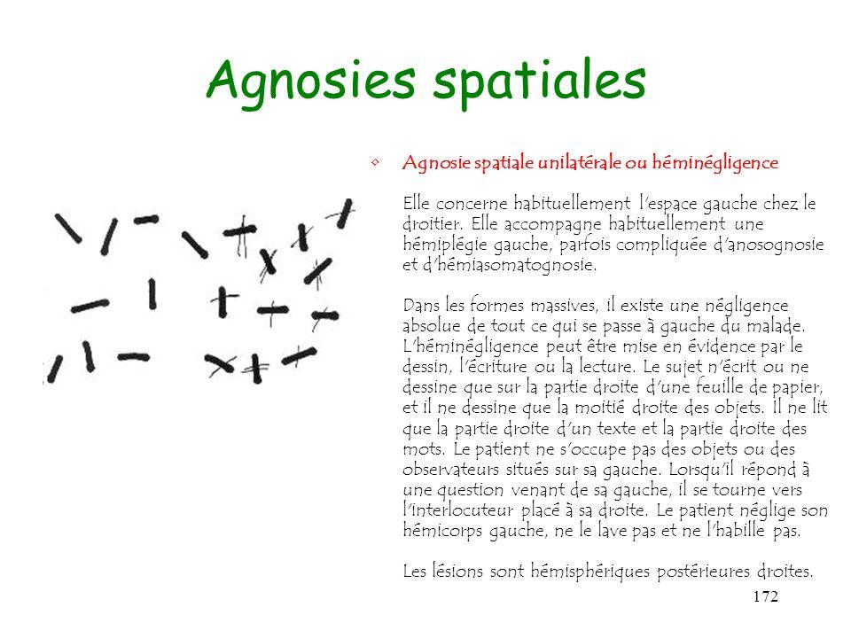 172 Agnosies spatiales Agnosie spatiale unilatérale ou héminégligence Elle concerne habituellement l'espace gauche chez le droitier. Elle accompagne h