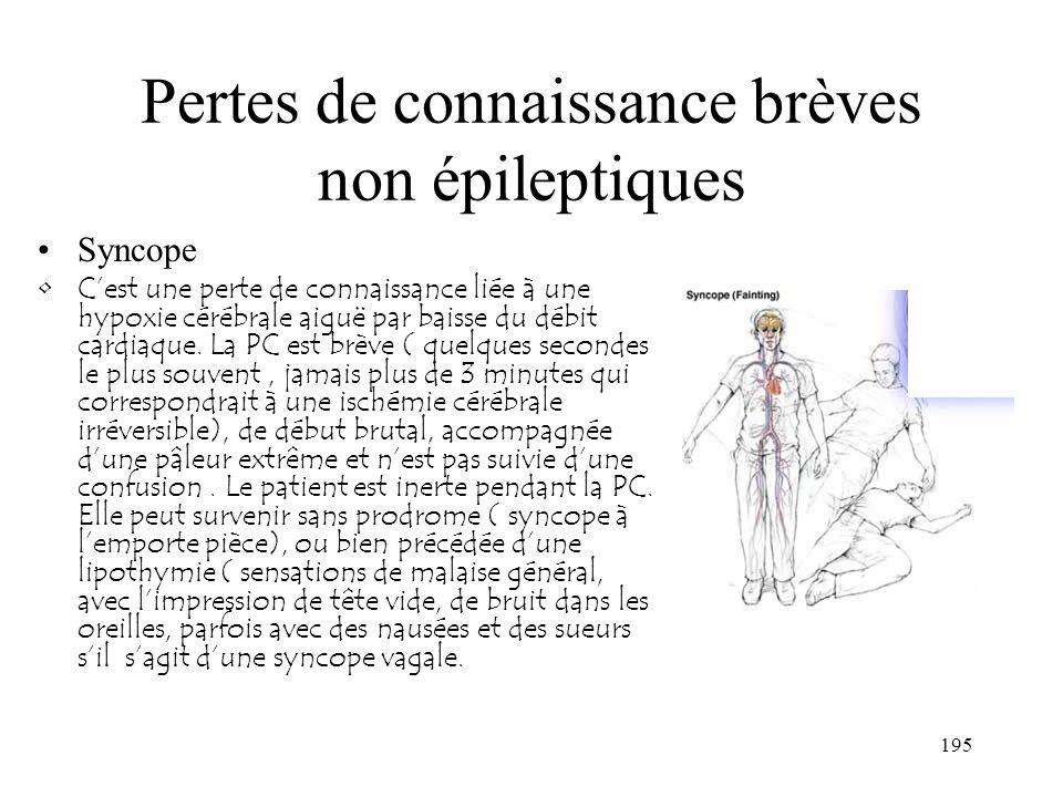 195 Pertes de connaissance brèves non épileptiques Syncope Cest une perte de connaissance liée à une hypoxie cérébrale aiguë par baisse du débit cardi