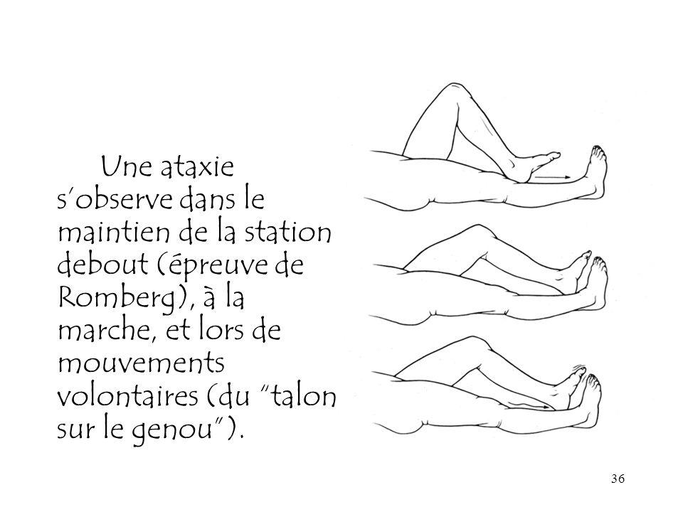 36 Une ataxie sobserve dans le maintien de la station debout (épreuve de Romberg), à la marche, et lors de mouvements volontaires (du talon sur le gen