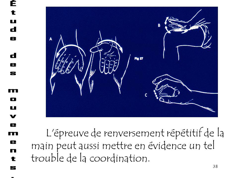 38 L'épreuve de renversement répétitif de la main peut aussi mettre en évidence un tel trouble de la coordination.