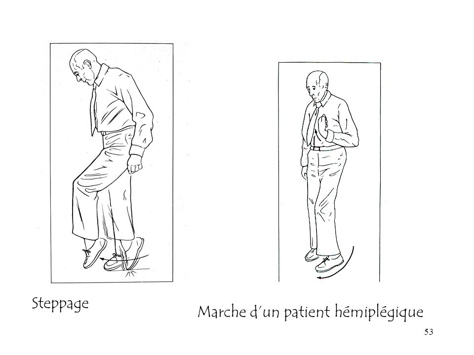 53 Steppage Marche dun patient hémiplégique