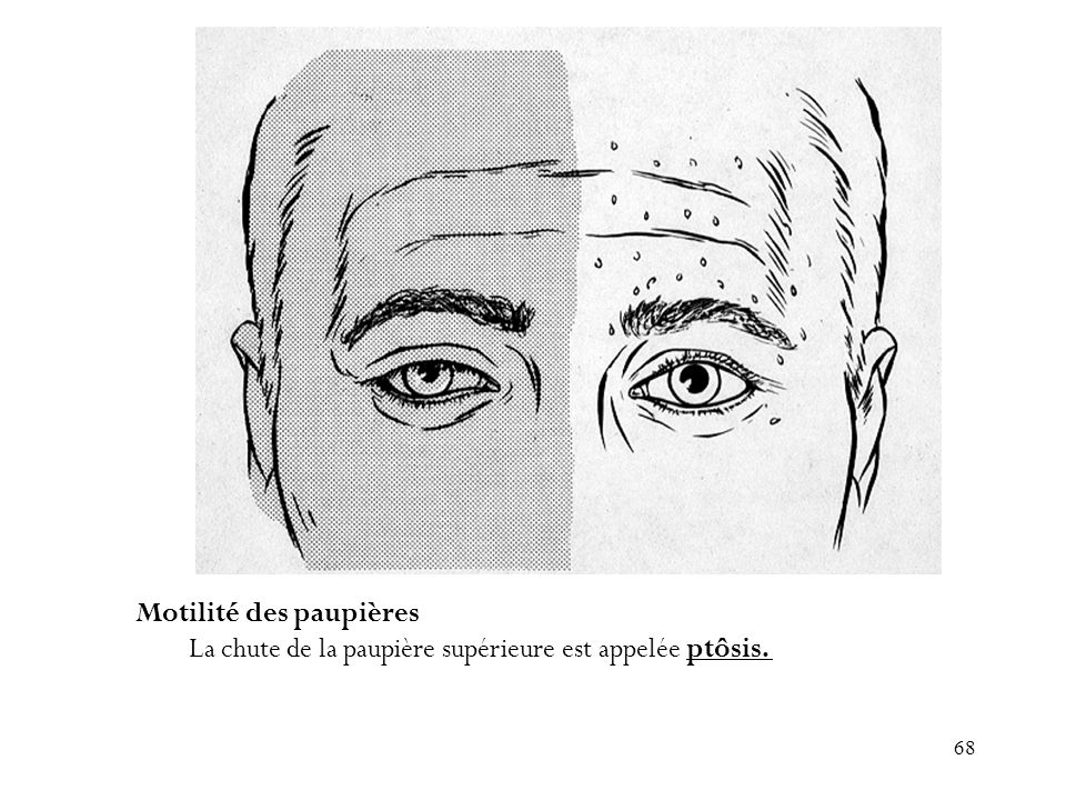 68 Motilité des paupières La chute de la paupière supérieure est appelée ptôsis.