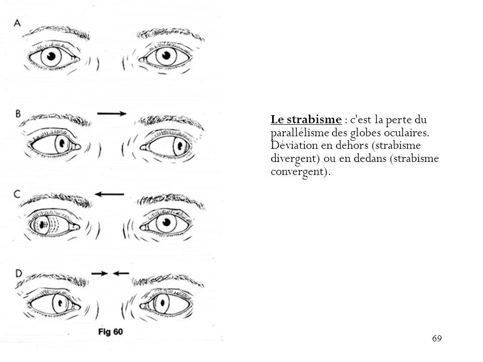 69 Le strabisme : c'est la perte du parallélisme des globes oculaires. Déviation en dehors (strabisme divergent) ou en dedans (strabisme convergent).